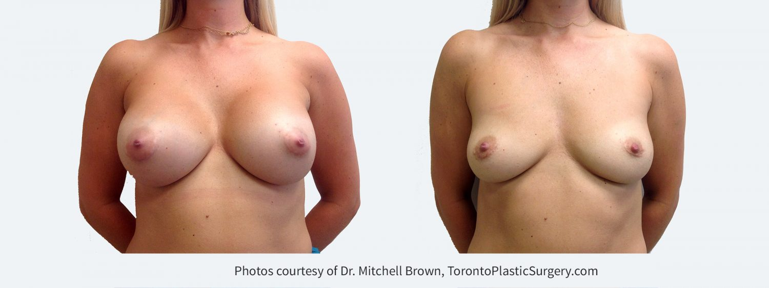 Previous breast augmentation. Patient felt too large and wanted implants removed. Before and 11 months after implant removal and fat grafting of 180cc in each breast.