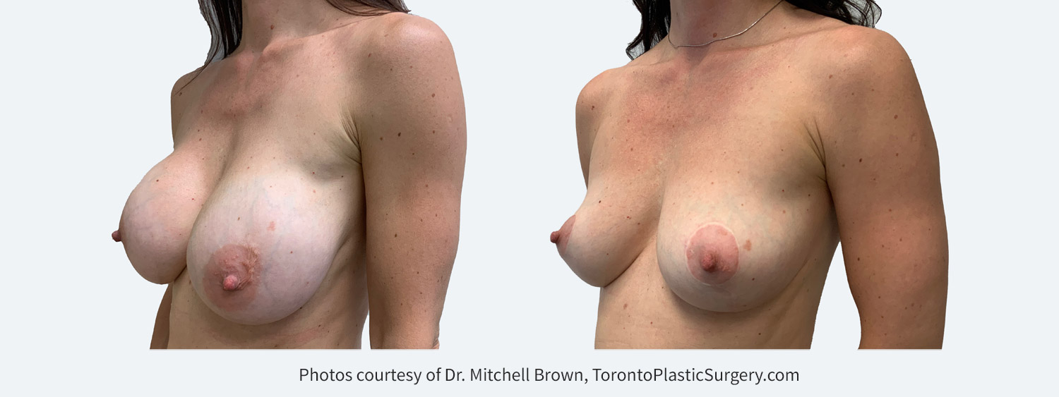 Capsular contracture treated with bilateral implant removal, capsulectomy and reshaping of the breasts with a breast lift and fat grafting. Before and after 1 year.