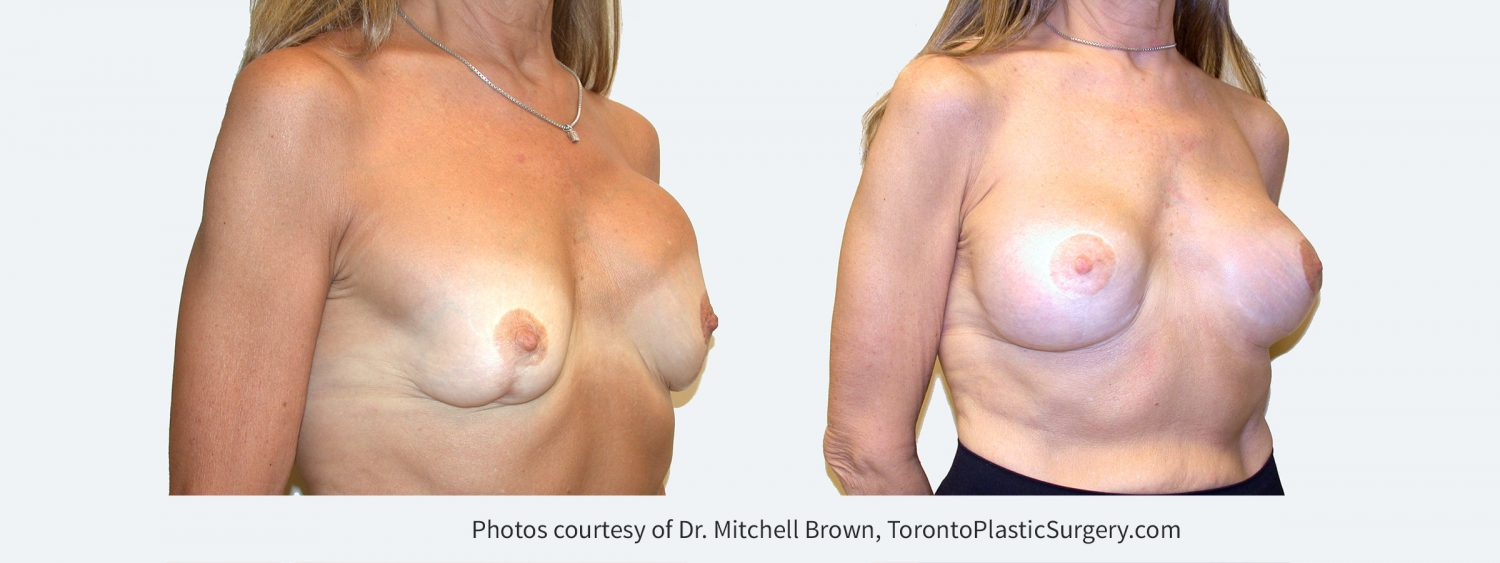 Multiple previous procedures including breast lift, implant replacement and correction of capsular contracture. Now presenting with left breast implant rupture, capsular contracture, severe asymmetry and abnormal breast shape. Treated with implant removal, replacement of new 235 cc silicone gel breast implants under the pectoral muscle and revision of breast lift.  Before and 1 year after
