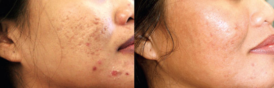 Laser treatment for acne and scars, Before and After