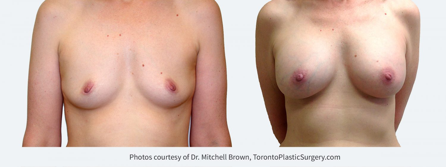 320 cc Silicone Gel Implants, Before and 14 Years After Surgery