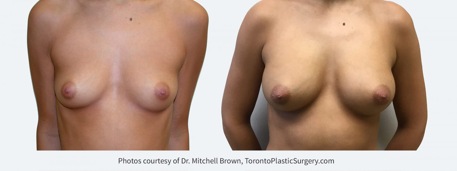 270 cc silicone gel implants, Before and 10 years after surgery