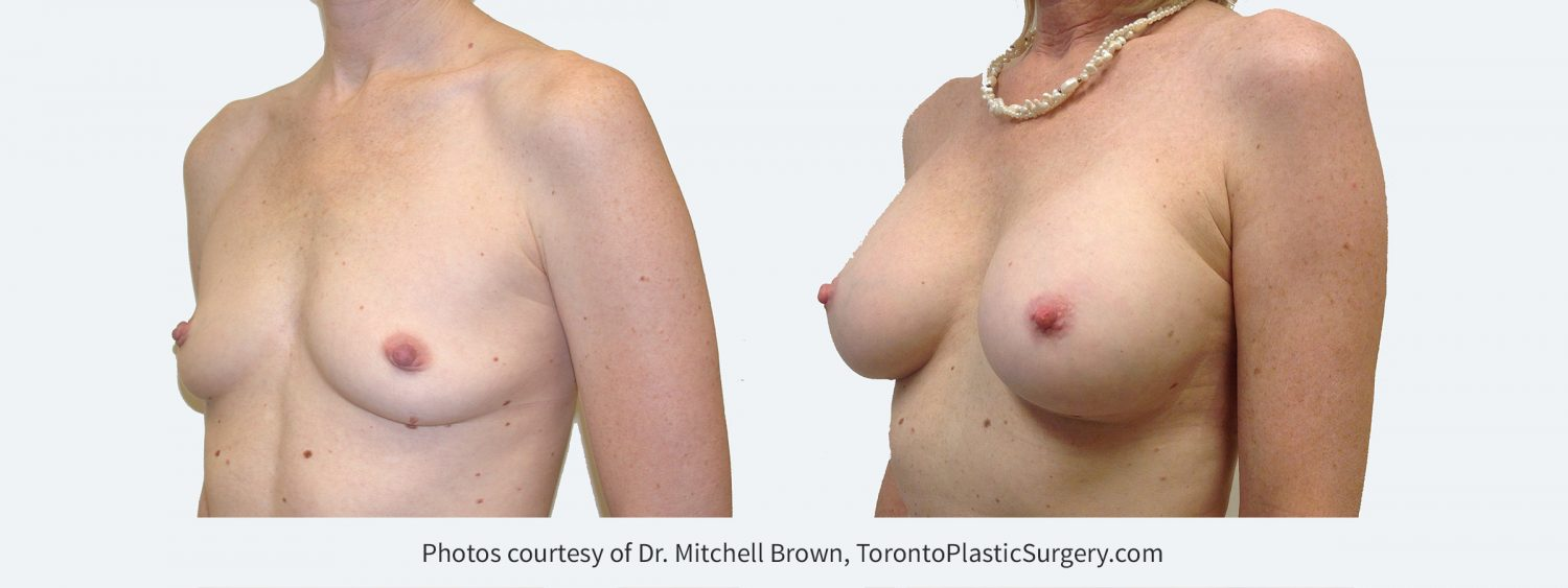 280 cc silicone gel implants, Before and 14 years after surgery