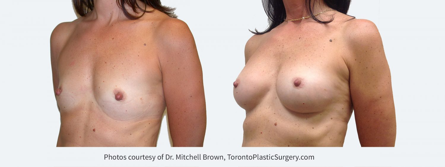 255 cc Cohesive Gel Implants, Before and 8 Years Post Surgery