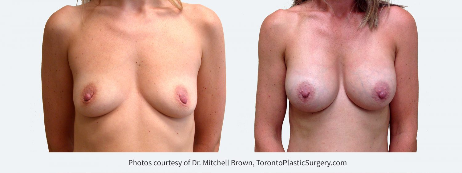 295 cc Cohesive Gel Implants, Before and 8 Years Post Surgery