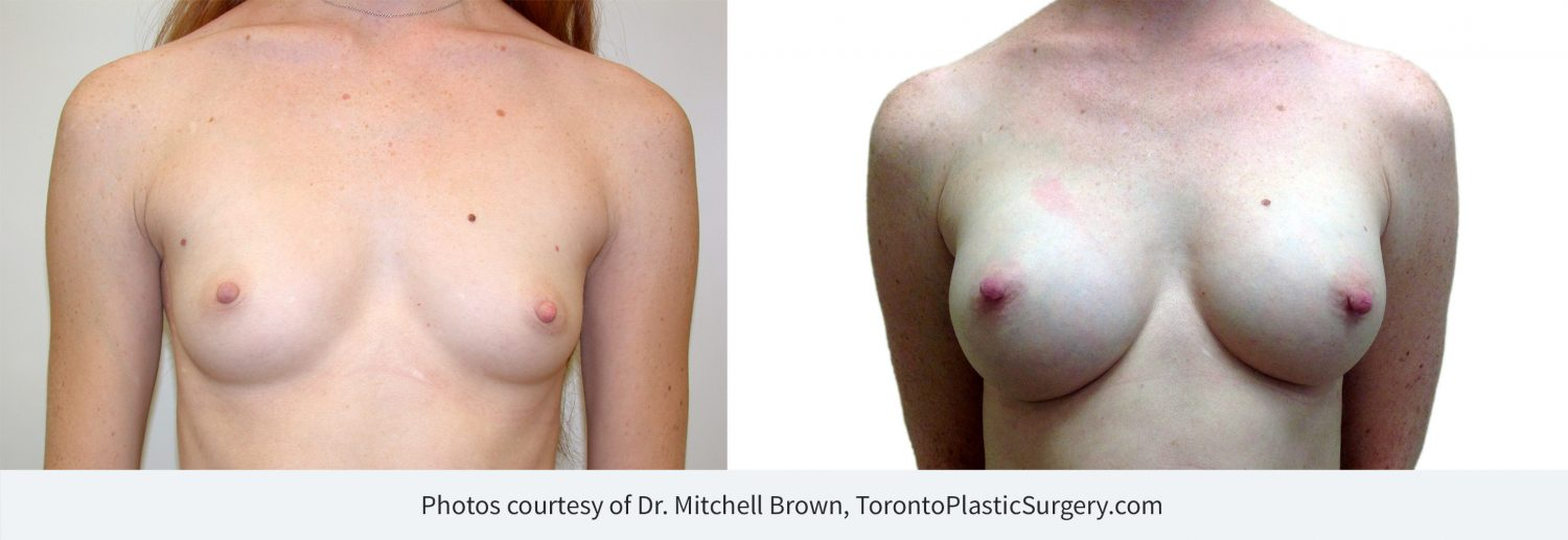 Breast augmentation with 265cc implants, before and after 13 years