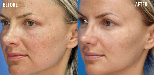 Microlaser Peel, Before and After