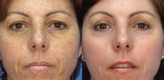Profractional, Before and After