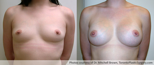 354gm Textured Round Gel Implant, Subpectoral Fold Incision, Before and After 6 Months