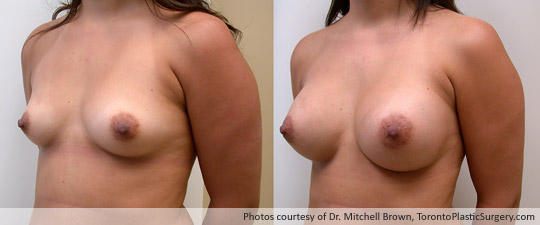 290gm Textured Round Gel Implant, Subpectoral Fold Incision, Before and After 6 Months