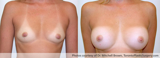 300gm Smooth Round Gel Implant, Subpectoral Fold Incision, Before and After 6 Months