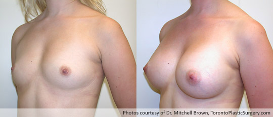 Smooth 340gm Round Gel Implant, Subglandular Fold Incision, Before and After 6 Months