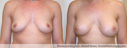 285gm Smooth Round Gel Implant, Subpectoral Fold Incision, Before and After 6 Months