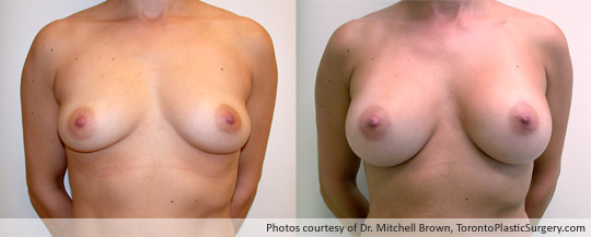 300gm Round Gel Implant, Subpectoral Fold Incision, Before and After 6 Months