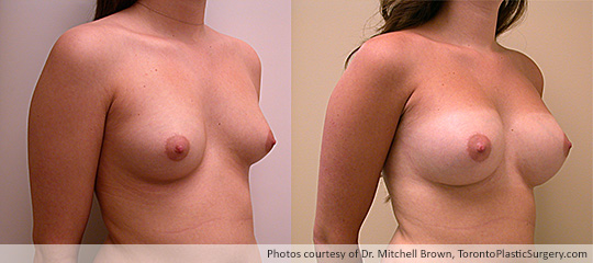 Breast Asymmetry and Round Gel Implants: Subpectoral Fold Incision, 300cc Left, 270cc Right, Before and After 18 Months