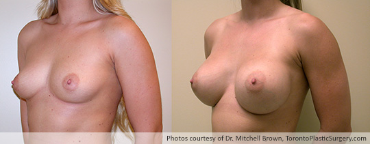 435gm Round Gel Implants, Subpectoral, Fold Incision, Before and After 8 Months
