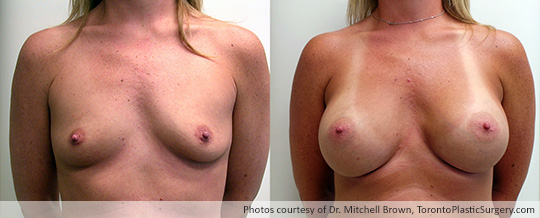 500gm Round Gel Implants, Subpectoral, Fold Incision, Before and After 6 Months