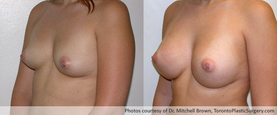 360cc Left / 340cc Right Saline Implants, Subglandular Augmentation Fold Incision, Before and After 6 Months