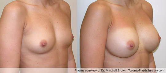 390cc Saline Implant, Subpectoral Fold Incision, Before and After 6 Months