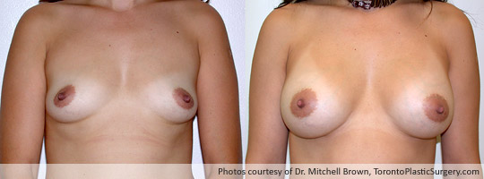 330cc Saline Implant, Subpectoral Fold Incision, Before and After 6 Months