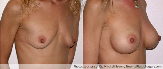 290cc Saline Implant (Emptiness following pregnancy), Subpectoral Fold Incision, Before and After 6 Months