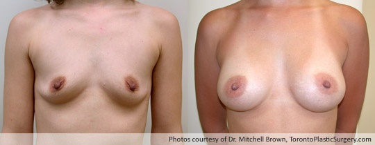 295gm Shaped Gel Implant, Subpectoral, Fold Incision, Before and After 8 Months