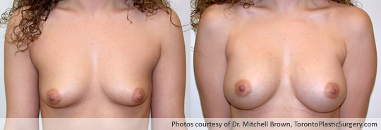 335gm Shaped Gel Implant, Subpectoral, Fold Incision, Before and After 6 Months
