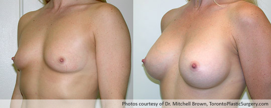 295gm Shaped Gel Implant, Subpectoral, Fold Incision, Before and After 1 Year