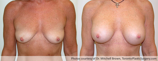 360gm Shaped Gel Implant, Subpectoral, Fold Incision, Before and After 1 Year
