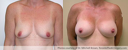 Shaped Gel Implants, Subpectoral, Fold Incision: Medium height, Full Projection – 295 gms, Before and After 8 Years