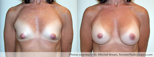Tuberous Breast Surgery with Insertion of Shaped Gel Implants, 225gm, Under Muscle, Fold Incision, Before and After 6 Months