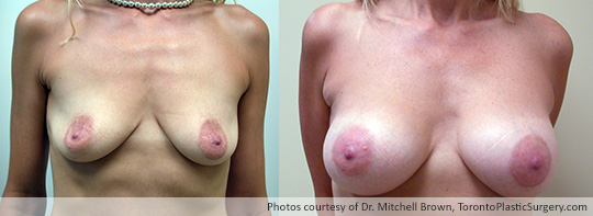 Shaped Gel Implants, 295gm, Under Muscle, Fold Incision, Before and After 7 Years