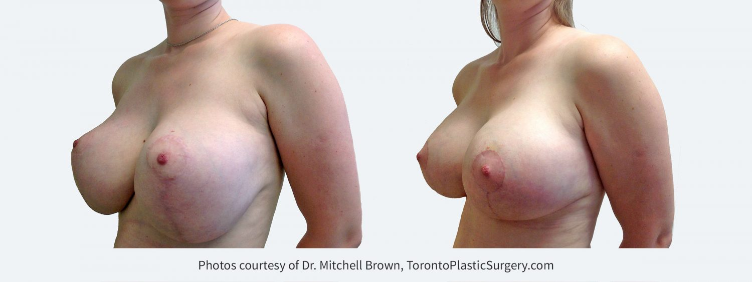 Large implants with inadequate breast lift. This has resulted in stretching of the breast skin and nipples placed too high. Correction with small downsizing of implants and revision of the breast lift including internal support for the implant position. Before and 4 months after