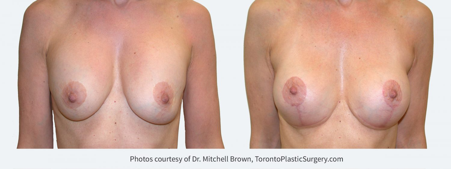 Previous breast augmentation under the muscle with a breast lift. Implants have remained soft, however there has been sagging of the breast tissue. Correction performed with replacement of silicone gel implants in a new position under the muscle and revision of the breast lift with removal of lower breast tissue. Before and 3 months after.