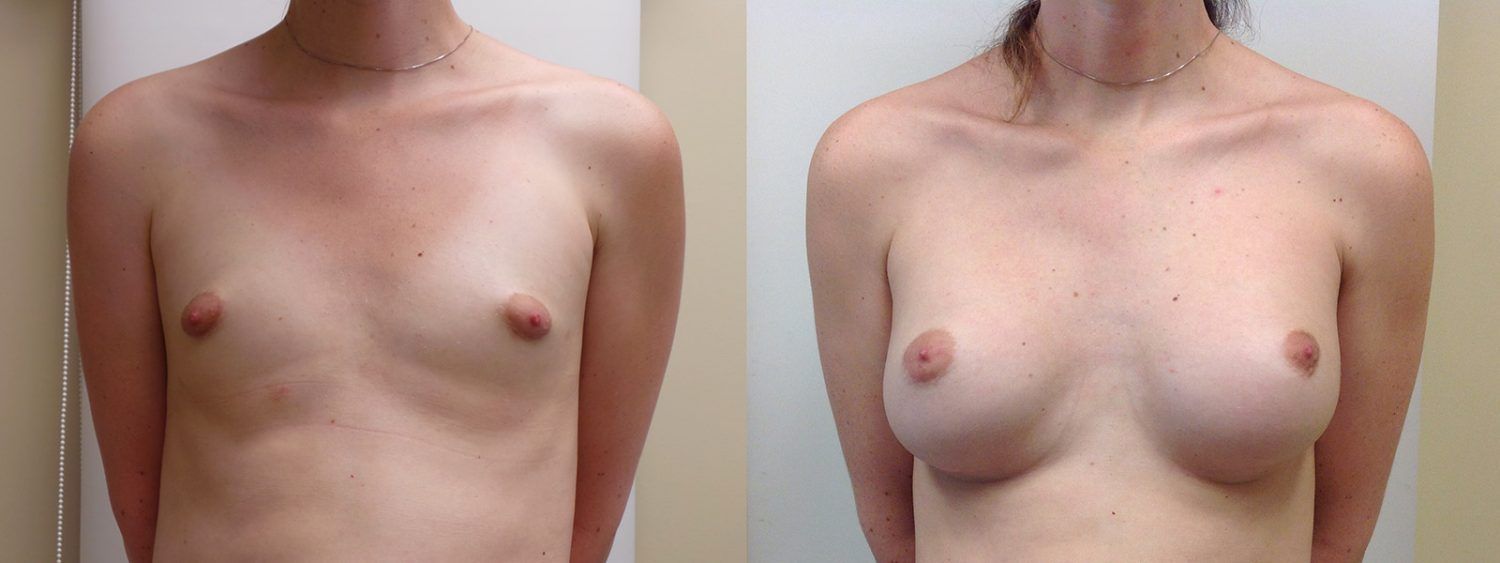 Trans-female breast augmentation with 420 cc implants, fold incision, Before and 3 Years