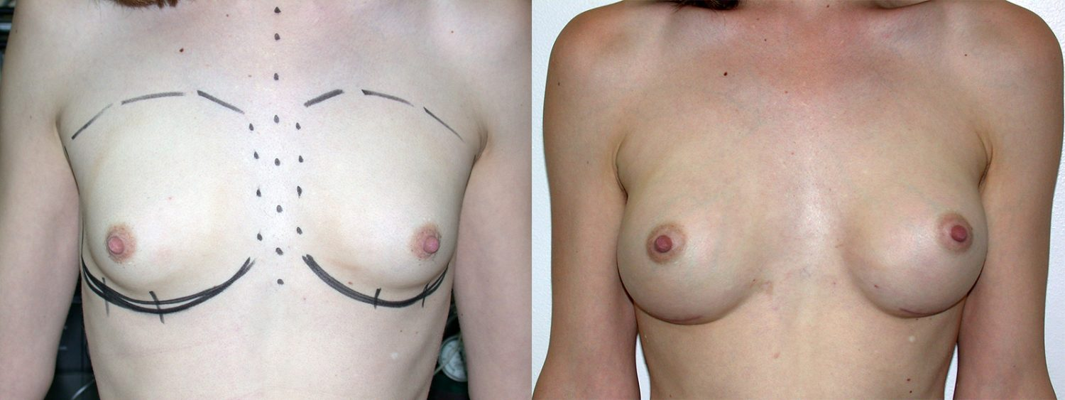 Trans-female breast augmentation, 280cc implant, fold incision, Before and 4 Years