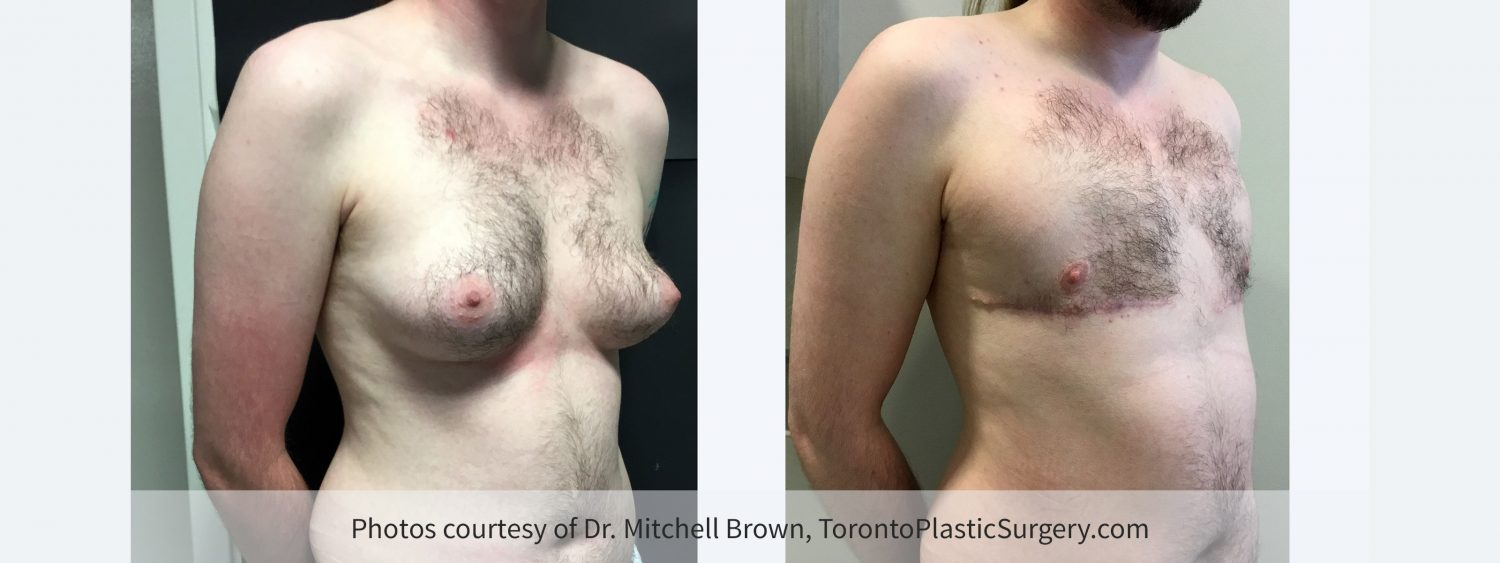 Transmale, Double Incision-Free Nipple Graft, Before and 3 Months After