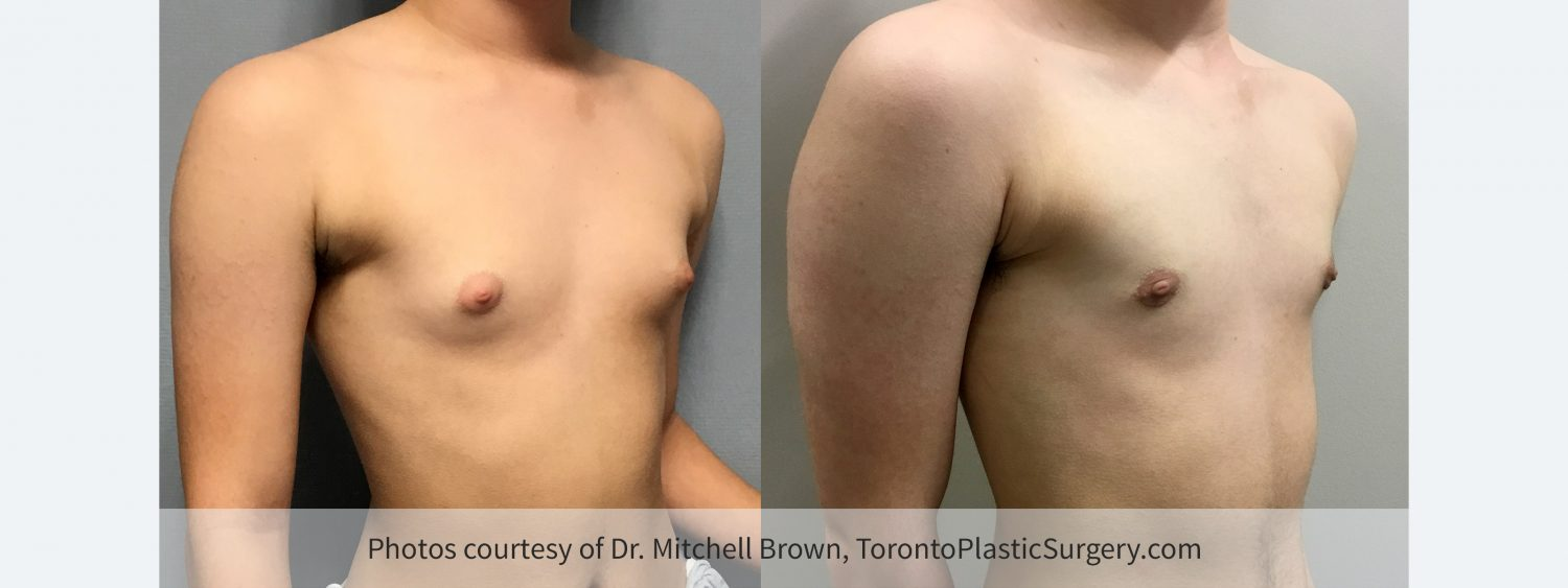 Transmale, Keyhole Mastectomy, Before and 6 Months After