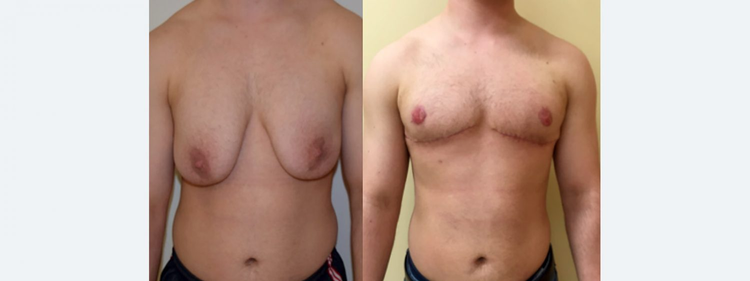 Transmale, Double Incision Free Nipple Graft, Before and 6 Months