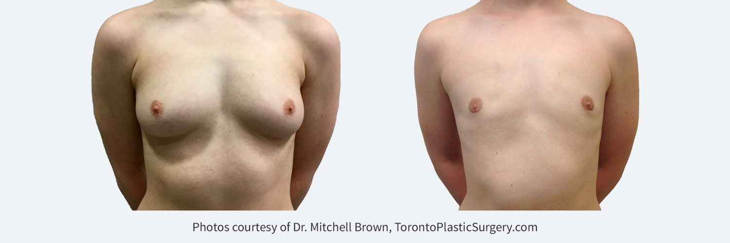 Transmale, Keyhole Mastectomy, Before and 4 months after