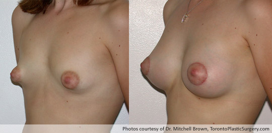 Tuberous Breast, Areola Reduction with Insertion of a 295gm Shaped Gel Implant, Before and After 6 Weeks