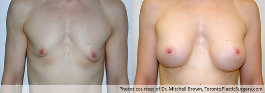 Tuberous Breast Surgery with Insertion of a 320gm Shaped Gel Implant, Before and After 4 Years