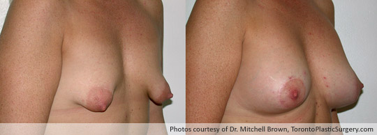 Tuberous Breast, Areola Lift and Insertion of a 375gm Shaped Gel Implant, Before and After 6 Months