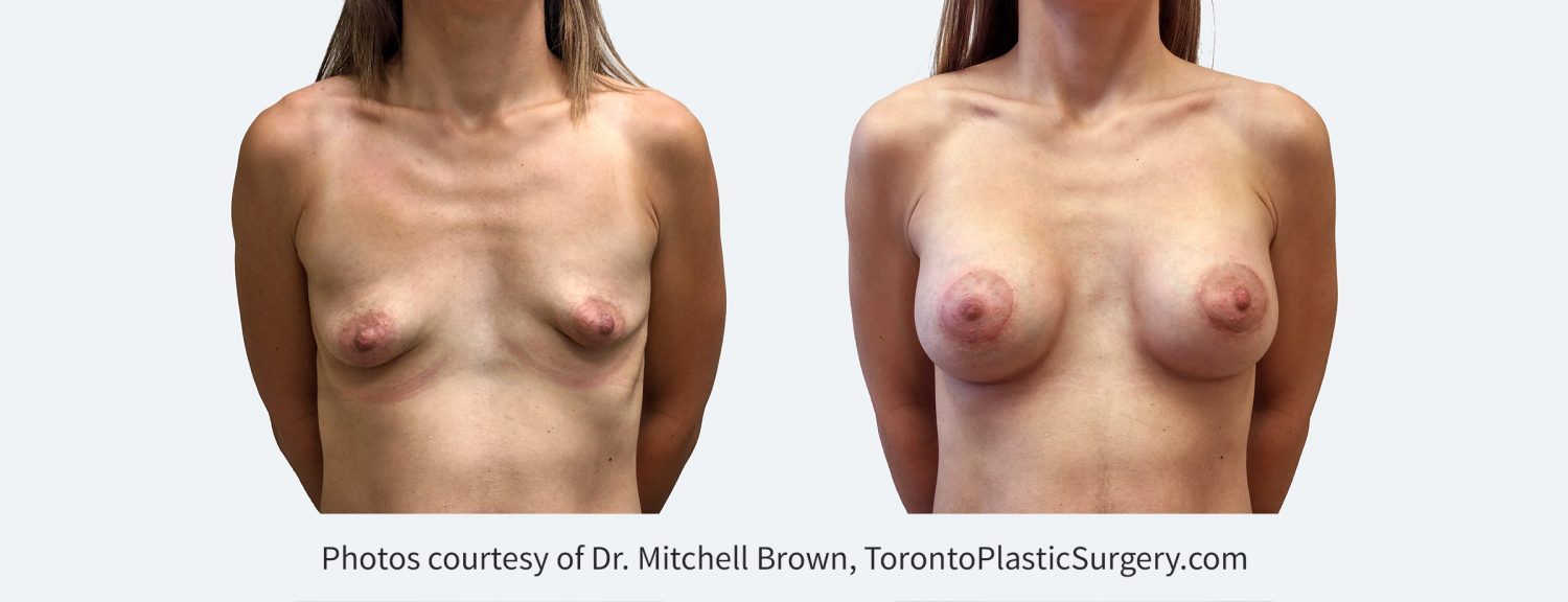 Tuberous breast treated with 295cc cohesive gel implant under the muscle along with lift and reduction of the areola. Before and 4 years after surgery.
