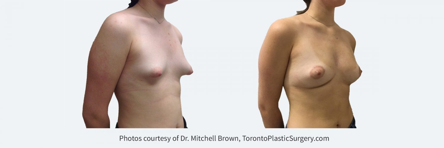 Woman with congenital tuberous breasts. Treated with two sessions of fat grafting and a lift and reduction of the areola. Before and After.