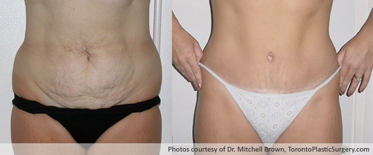 Case 1: Tummy Tuck and Liposuction of Hips, Before and After 6 Months