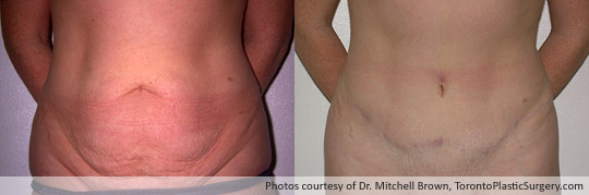 Case 2: Tummy Tuck and Revision of Caesarian Scar, Before and After 18 Months