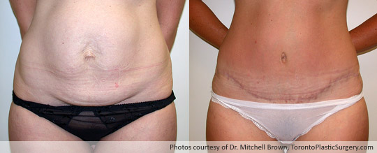Case 3: Tummy Tuck and Liposuction of Hips, Before After 6 Months
