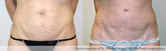 Case 5: Tummy Tuck, Before and After 7 Years