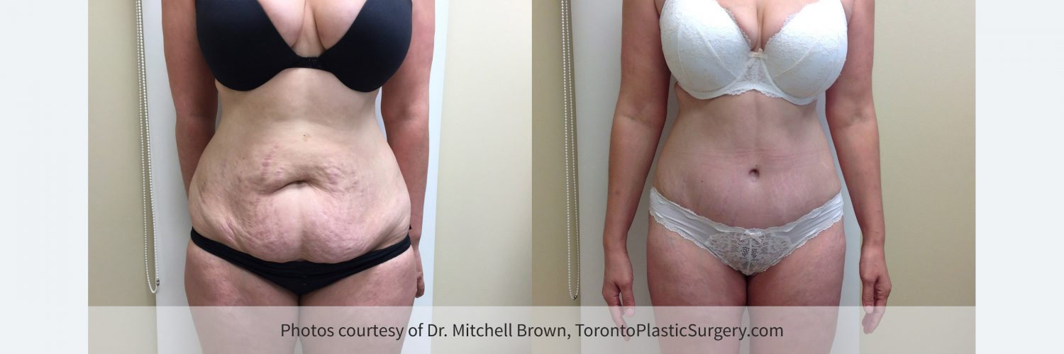Case 6: Before and 6 months after tummy tuck with liposuction of the waist and hips